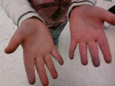 A 9-year-old with Raynaud phenomenon. Notice the d