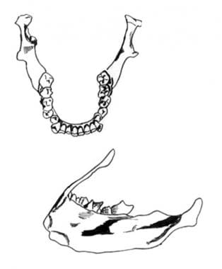 Anatomy of the mandible.