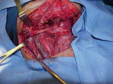 The final aspect of the surgical wound after remov