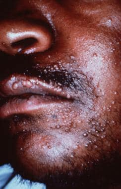 Multiple papules on the face of a man with HIV.