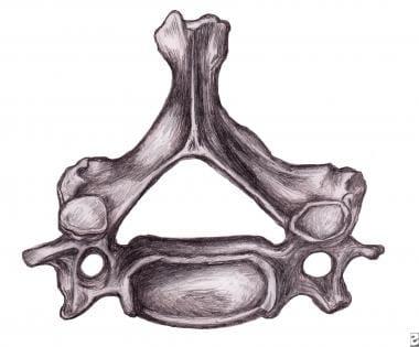 Cervical vertebra.