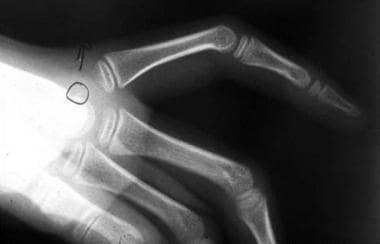 Radiograph of the hand of a patient with complex s