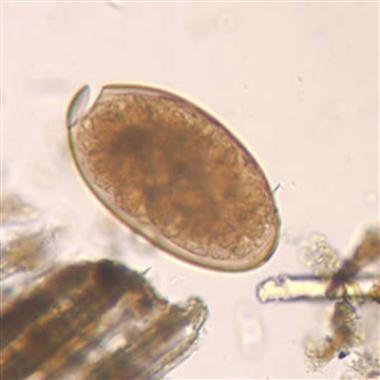 Fasciola hepatica egg in an unstained wet mount (