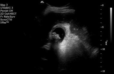 Gallbladder wall thickening with edema, seen in tr