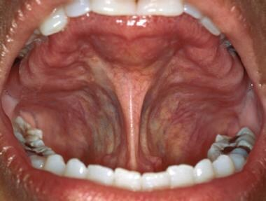 The lingual frenum is the primary soft tissue atta