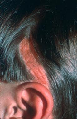 Macular benign skin lesion: Nevus sebaceous of Jad