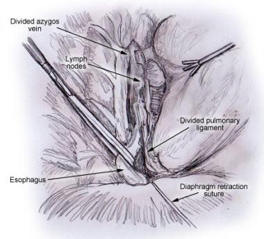 Mobilization of the thoracic esophagus using a Pen