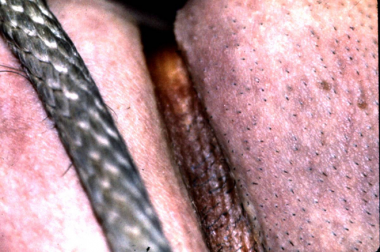 Ligature fibers may remain on the skin, which can
