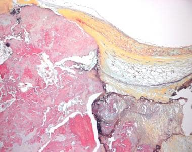 This histologic section from a tricuspid aortic va