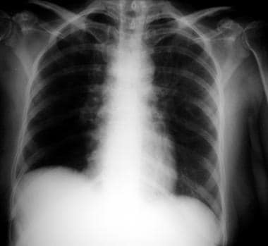 Chest radiograph in a patient with HIV infection,