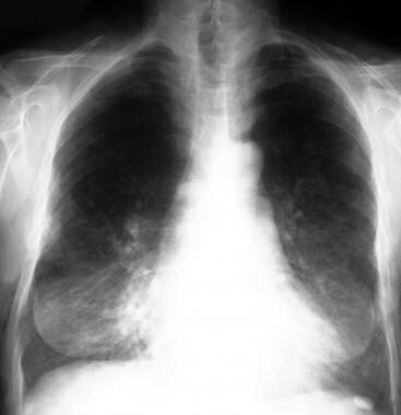 Chest radiograph in a 62-year-old patient with NF1