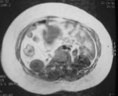 Crohn disease. MRI with CT correlation. MRI demons