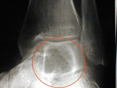 Oblique view of the ankle. This radiograph reveals