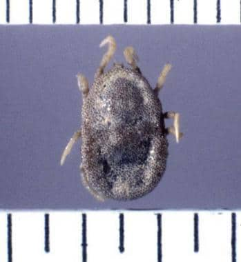 This is an example of a soft-bodied tick of the ge