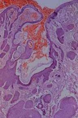 Low-power view of trichofolliculoma with a primary
