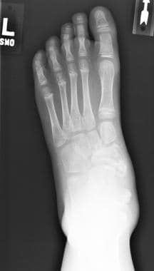 Anteroposterior view of left foot. Medial ankle an