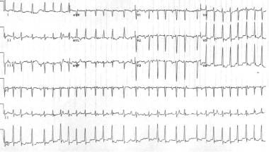 Multifocal atrial tachycardia. Note the different