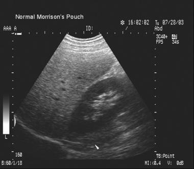 Blunt abdominal trauma. Normal Morison pouch (ie,