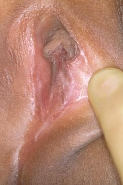 Extensive labial adhesion. Not to be confused with