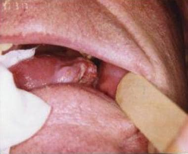 Clinical appearance of a lateral tongue squamous c