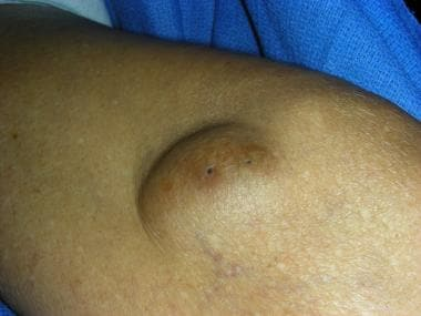 Subepidermal lesion: Keratinous cyst (epidermal in
