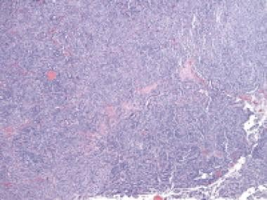 Low magnification of Sertoli-Leydig cell tumor of
