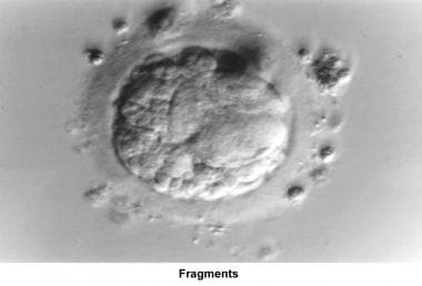 Infertility. Fragments. Image courtesy of Jairo E.