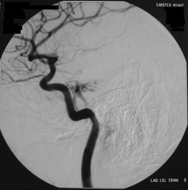 Selective right carotid angiogram from a patient w