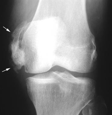 Anteroposterior radiograph of the left knee in a p