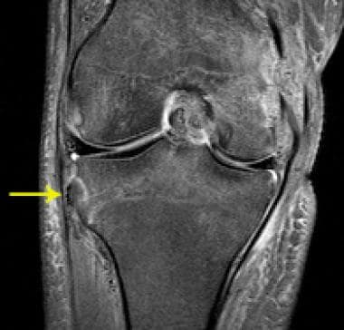 Segond fracture in a patient with an ACL tear. Fat