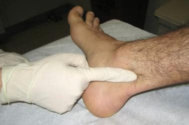 Palpation of the posterior tibial artery.
