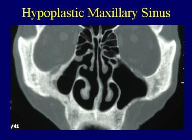 Hypoplastic right maxillary sinus.