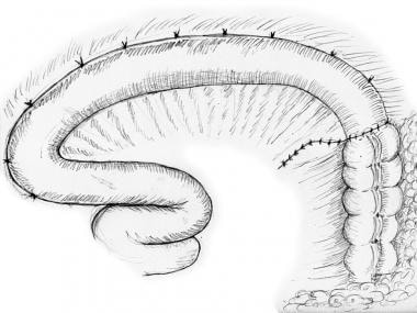 Ileum anchored to lateral abdominal wall.