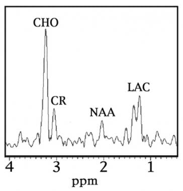 Magnetic resonance spectroscopy is representative
