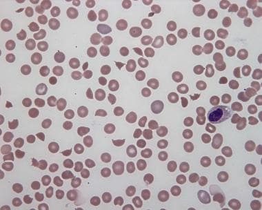 Peripheral smear in hemolytic uremic syndrome, wit