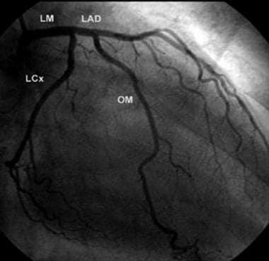 Selective left coronary artery angiogram demonstra