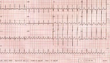 Atrial flutter. The patient's heart rate is approx