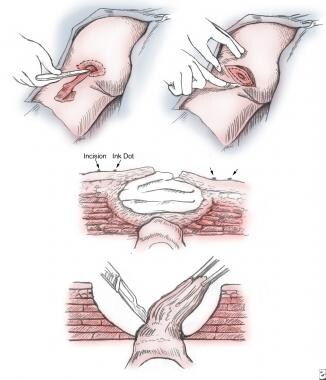 Radical bursectomy is performed by placing methyle