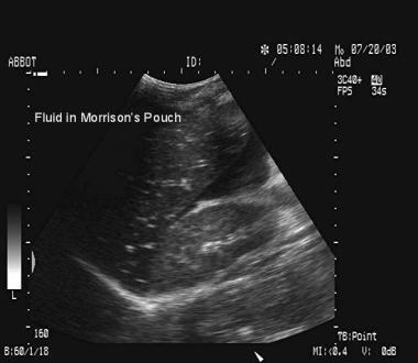 Blunt abdominal trauma. Free fluid in Morison pouc