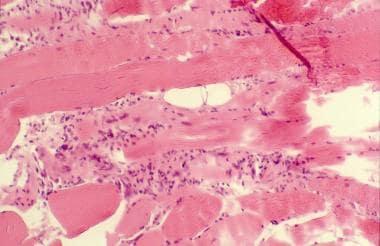 Histopathology of polymyositis showing endomysial