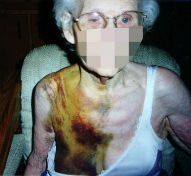 The patient refused further workup and treatment b