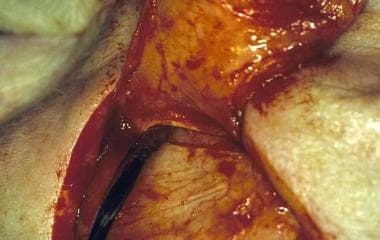 Periosteum incorporated into the pedicle base.