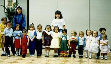 15 Ecuadorian children with GHRD due to homozygosi