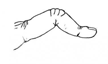 Boutonniere deformity.