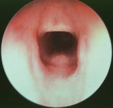 Subglottic view of very mild congenital subglottic
