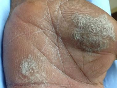 Plaques of lichen simplex chronicus on the hand.