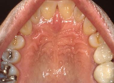 The hard palatal mucosa is characterized by kerati
