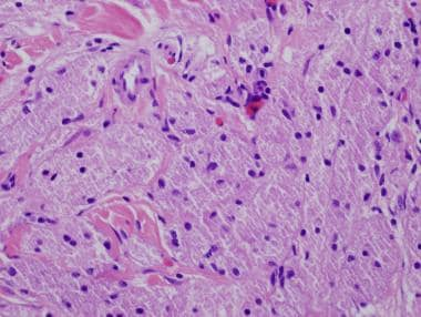 Granular cell tumors are also known as granular ce