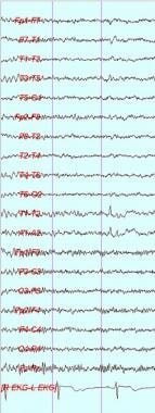 Left temporal small sharp spike. Note low amplitud