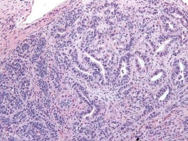 Higher magnification of Sertoli-Leydig cell tumor
